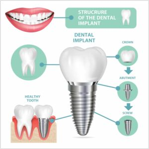 details you need to know about dental implants